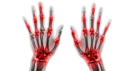 Rheuma: Medikamente ausschleichen?