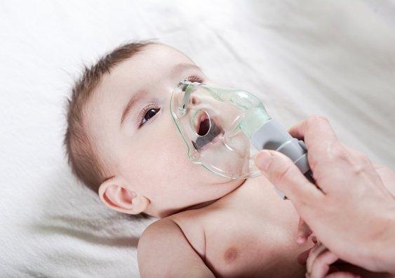 RSV-Studie zeigt Alter, wenn Kleinkinder besonders anfällig für asthma