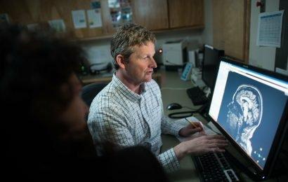 Teen brain volume changes mit einer geringen Menge von cannabis verwenden, findet Studie