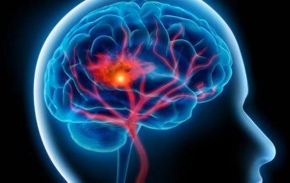 Neue Studie: Durch Bluthochdruck und Rauchen erhöht sich das Hirnblutungs-Risiko dramatisch
