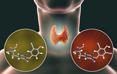Unbekannte Dickmacher entdeckt: Durch diese Chemikalien im Essen wird unser Stoffwechsel gestört