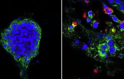 Kombinations-Behandlung, diabetes-Medikament und Immuntherapie kann helfen gegen Brustkrebs