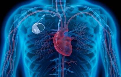 Achtung: Gesundheitsgefahr für Herzpatienten – Medtronic ruft über 100.000 Herzschrittmacher weltweit zurück
