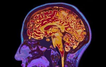 Ein unerwarteter Weg zur Behandlung von neurodegenerativen Erkrankungen
