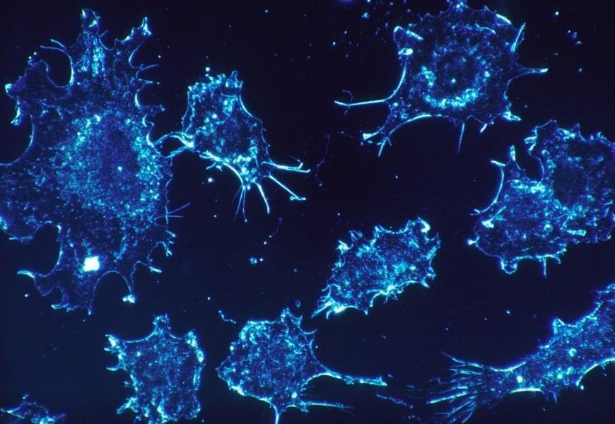 Wissenschaftler entdecken neuartigen Strategie zur Erreichung häufigste Art von Krebs