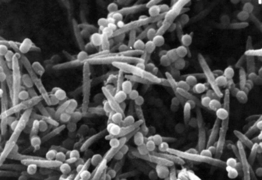 Wie eine gemeinsame Bakterien in der Mundhöhle macht Darmkrebs tödlicher