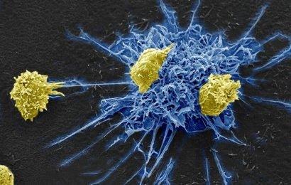 Immuntherapie kicks und tötet HIV durch die Nutzung einer gemeinsamen virus