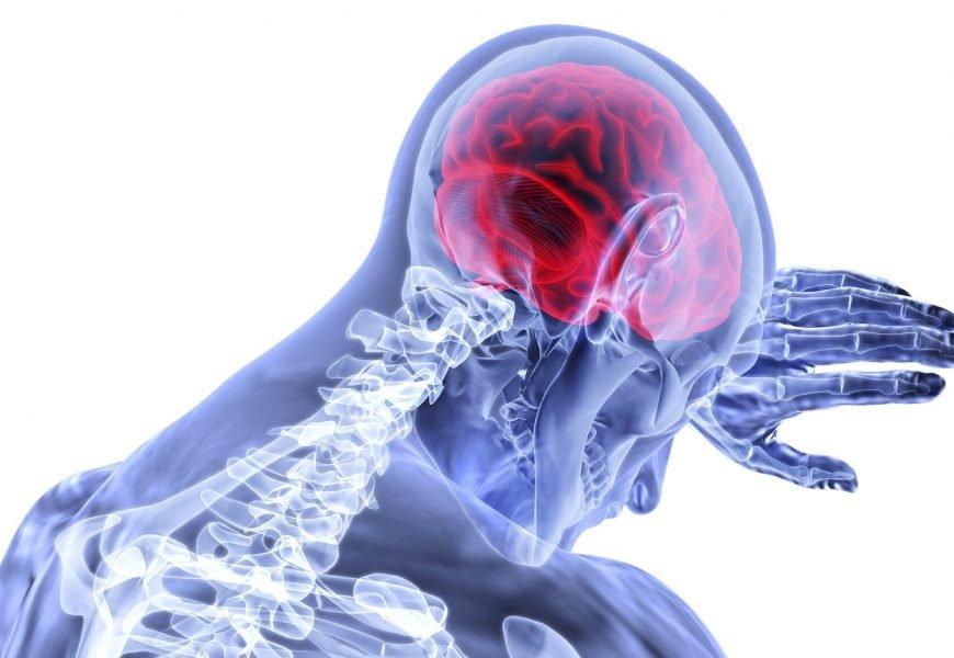 Forscher entwickeln vielversprechende neue Schlaganfall-Therapie