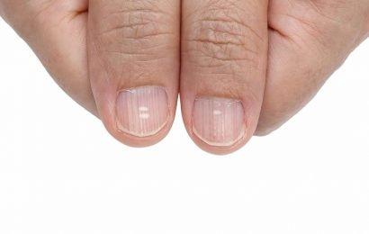 Flecken auf den Fingernägeln können auf Krankheiten deuten