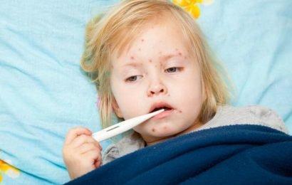 CDC: Vereinigte Staaten von Amerika zur Pause Masern-Fällen aufnehmen