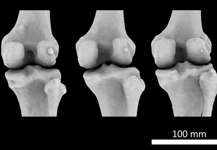 Mystery arthritis-linked-Knie-Knochen drei mal häufiger auf als vor 100 Jahren
