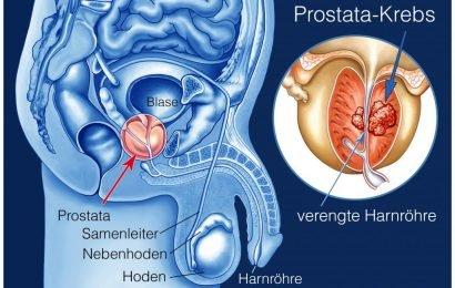 Fünf erste Warnzeichen von Prostatakrebs sollten nicht ignoriert werden