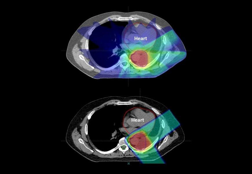 Proton-Therapie für Krebs senkt das Risiko von Nebenwirkungen