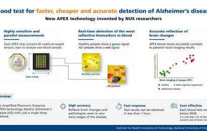Forscher entwickeln neuen Bluttest für schneller, billiger und genauer Erkennung der Alzheimer-Krankheit