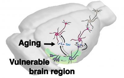 Das Alter selbst scheint zu erhöhen, die Ausbreitung der Alzheimer-assoziierten tau im Gehirn