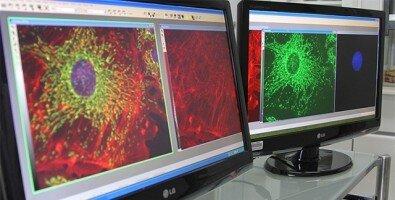 Gentechnisch veränderte virus bekämpft Prostatakrebs