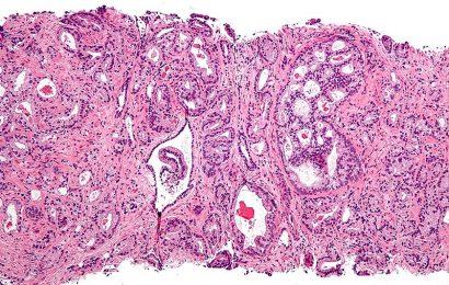 Prostata-Krebs-Urin-test zeigt, wer Behandlung braucht und wenn