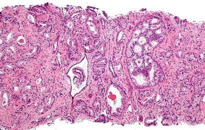Körper-Fett-Verteilung im Zusammenhang mit einem höheren Risiko für aggressiven Prostatakrebs