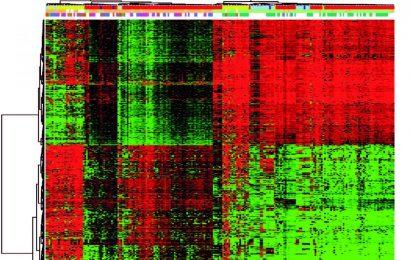 Forscher bestimmen epigenetische Ursprung von docetaxel-resistenten Brustkrebs