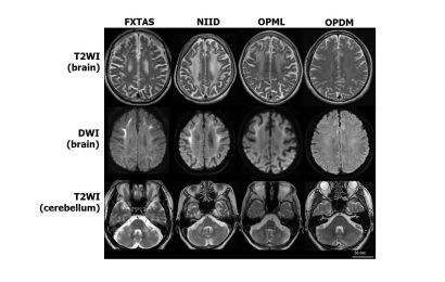 Darüber hinaus finden ein gen: das Gleiche wiederholte Dehnung der DNA fand in drei neurodegenerativen Erkrankungen