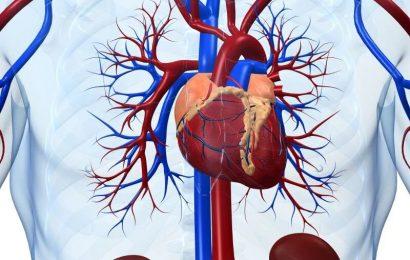 Vorherige Stille MI oft gefunden, bei der Obduktion beim plötzlichen Herztod