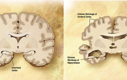 Blut-test ist mit 94% Genauigkeit bei der Identifizierung von frühen Alzheimer-Krankheit