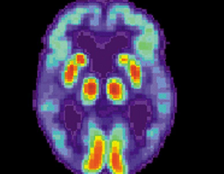 Gibt es bestimmte Lebensmittel, die Sie Essen können, um Ihr Risiko zu reduzieren Alzheimer-Krankheit?
