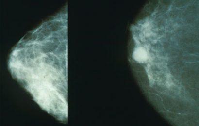 Neue Analysen zeigen link zwischen verschiedenen Formen der Hormonersatztherapie und Brustkrebs-Inzidenz