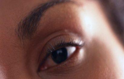 Wie zu entlasten trockene, Gereizte Augen
