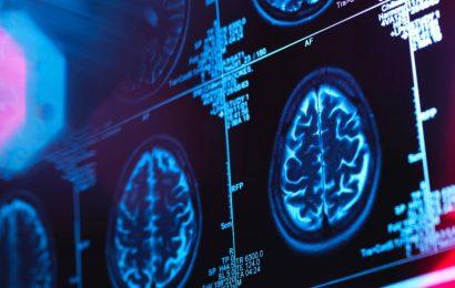 Jahre vor den ersten Symptomen – Bluttest erkennt Alzheimer