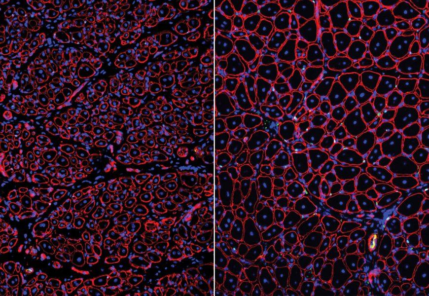 Entdeckt: Mögliches therapeutisches Ziel für die langsame Heilung von Muskeln im Alter