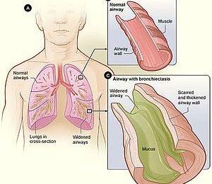 """Lunge Bakterien 'vortäuschen Schwangerschaft"""" zu vermeiden-Erkennung"""