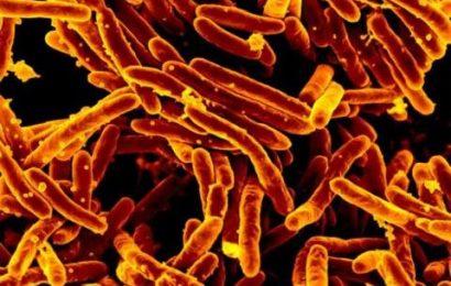 Anti-arthritis-Medikament Stoppt auch Tuberkulose-Bazillus aus der Multiplikation in Blut-Stammzellen