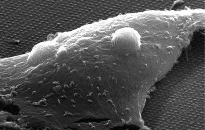 Roman nanoprobes zeigen, Versprechen für die optische überwachung der neuronalen Aktivität