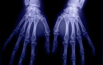 Gemeinsame Seiten der knochenabnutzung in der rheumatoiden arthritis-ID würde auf UNS