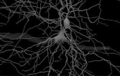 Forscher entdeckt subzelluläre Berechnungen im Gehirn bei der Entscheidungsfindung