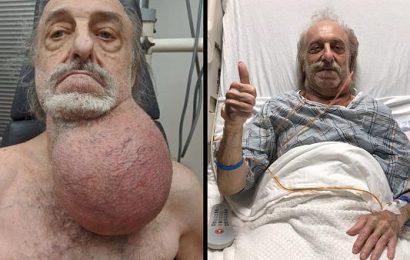 Ärzte entfernen Rentner fußballgroßen Tumor – zuvor schickten sie ihn weg