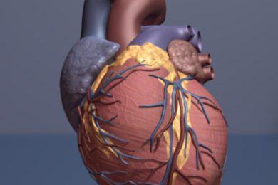 Muster der schwere Alkoholkonsum kann zu Schäden Gewebe Herz