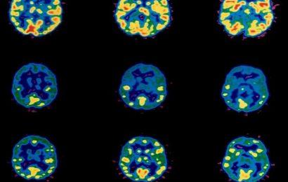 Könnte Gehirn-scans spot Kinder, die Stimmung, Aufmerksamkeit, Probleme frühzeitig?