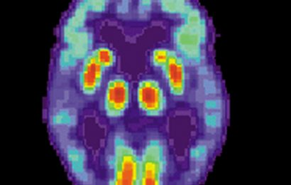 Antipsychotische Medikationen verbunden-Hirn-Verletzungen bei Patienten mit Alzheimer-Krankheit