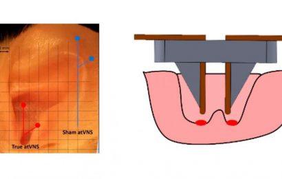 Die nicht-invasive Elektrostimulation führt zu einer verbesserten Speicher in den Mäusen