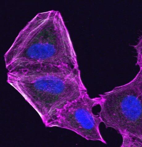 Research identifiziert neue route für die Bekämpfung von Resistenzen in der Haut-Krebs-Zellen