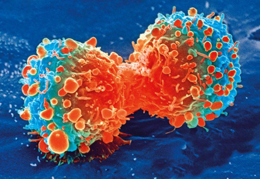 Eine mögliche neue Waffe gegen tödliche Gehirn-und Weichteil-Krebs
