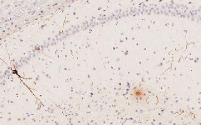 Aufbau von Proteinen im Gehirn wirkt sich auf Gene, die bei der Alzheimer-Krankheit