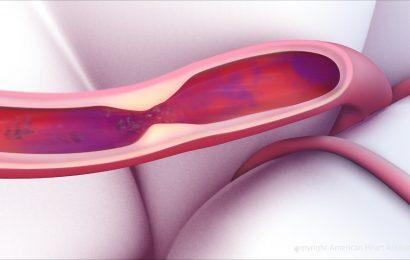 Mechanischen Gerinnsel-Entfernung ohne Gerinnsel busters kann ausreichend sein, Schlaganfall-Behandlung