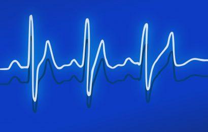 Forscher erstellen, testen AI zur Verbesserung der EKG-Tests für hypertrophe Kardiomyopathie