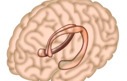 Essen junk-Lebensmittel zu beeinträchtigen, die Rolle des hippocampus bei der Regulierung fressen