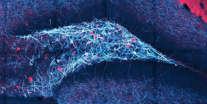 Wie erkennt das Gehirn feine Unterschiede