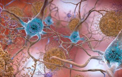 Subtilen Rückgang in der Wahrnehmung prognostiziert progression der Alzheimer-Pathologie