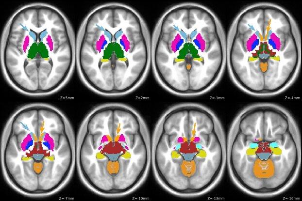 Studie links Gehirn-Funktion änderungen an der genetischen Gefahr in Aufmerksamkeits-Defizit – /Hyperaktivitäts-Störung-Diagnose